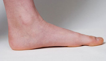 10 Common Reasons Why Your Feet Hurt
