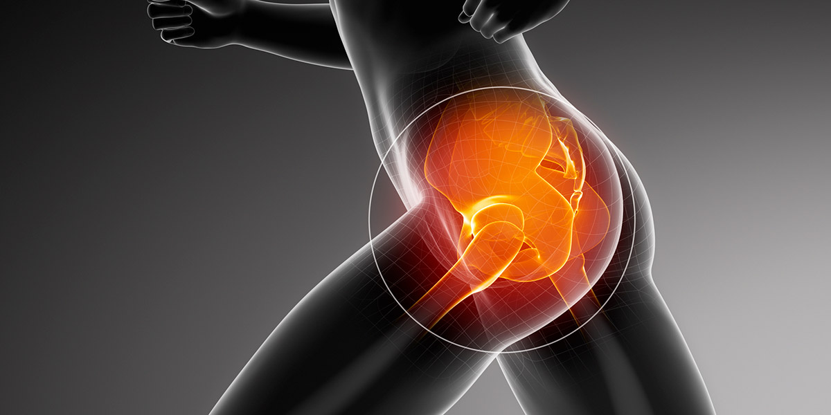 The Natural Hip Pain Solutions You've Been Searching For