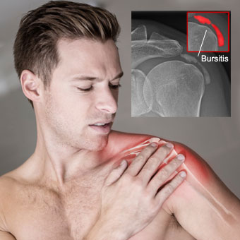 What Causes Shoulder Bursitis And How To Fix It