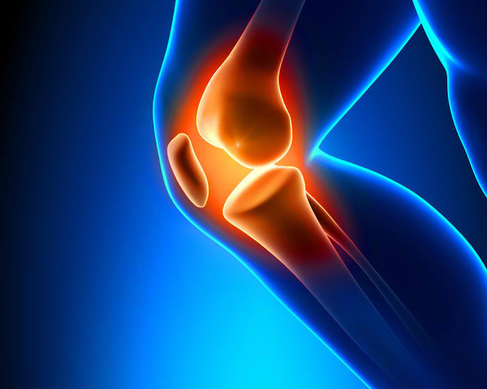 What Causes Knee Pain Its Treatment and Prevention