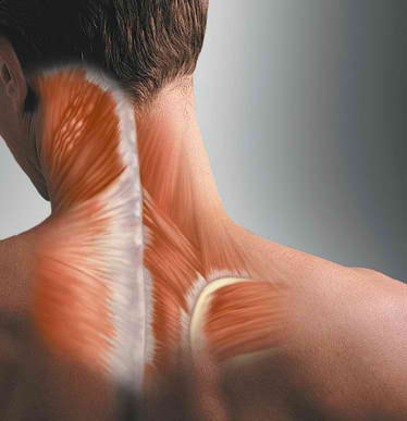 What Causes Neck Spasm and How to Treat it
