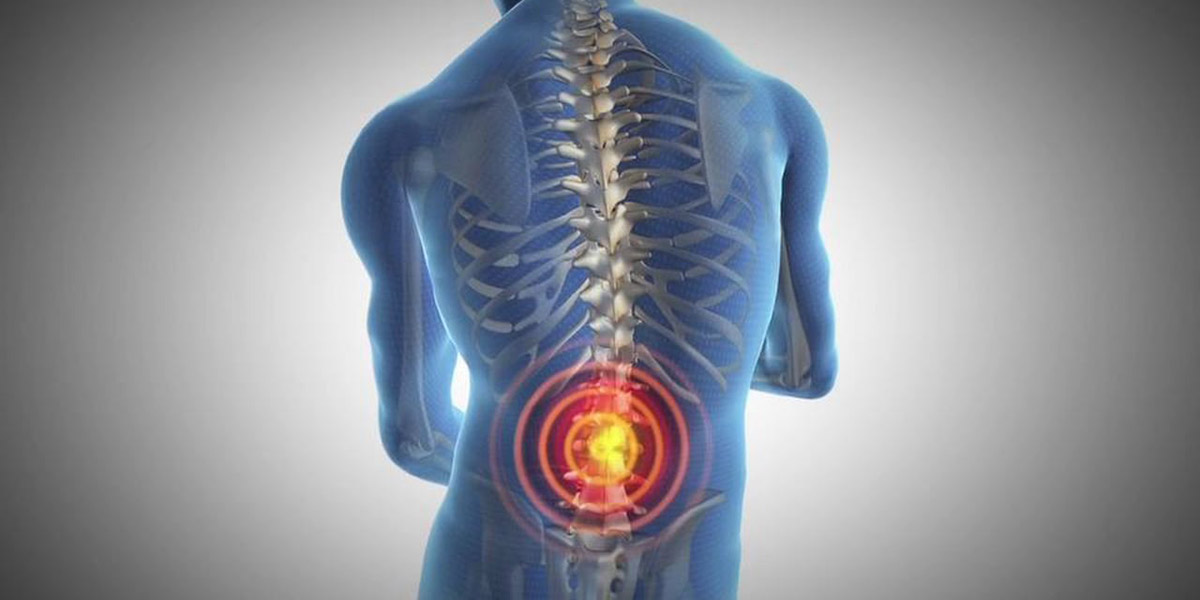 DIY Home Remedies For Back Pain